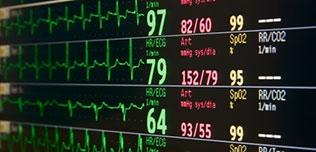 Electrocardiographs (ECG/EKG)