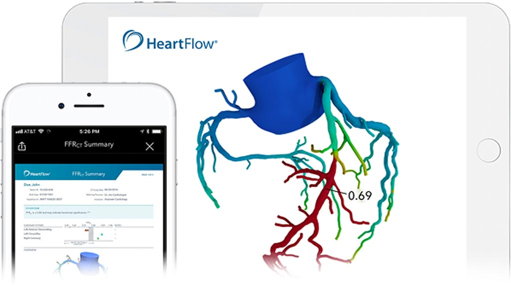 Image: HeartFlow develops non-invasive AI analysis software for creating 3D models of coronary arteries from CT scans (Photo courtesy of HeartFlow).