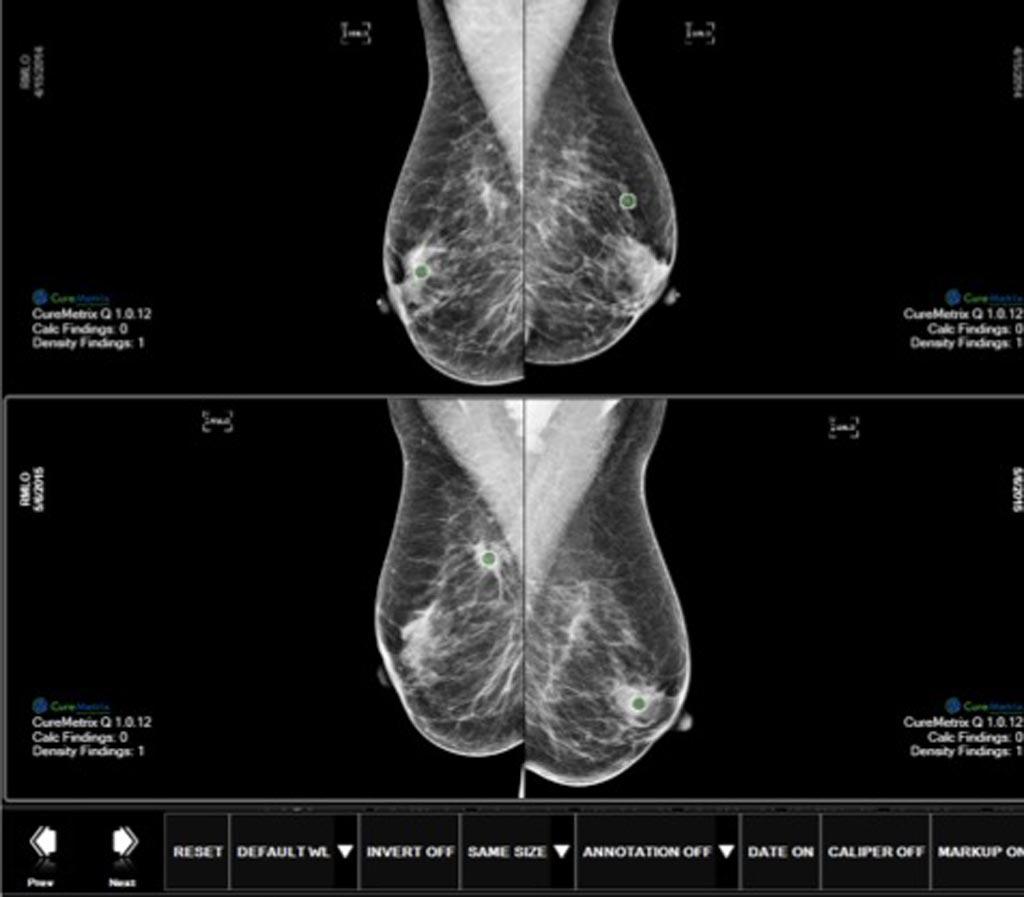 Image: The cmTriage software enables a radiologist to customize, sort, and prioritize their mammography worklist based on cases that may need immediate attention (Photo courtesy of CureMetrix).