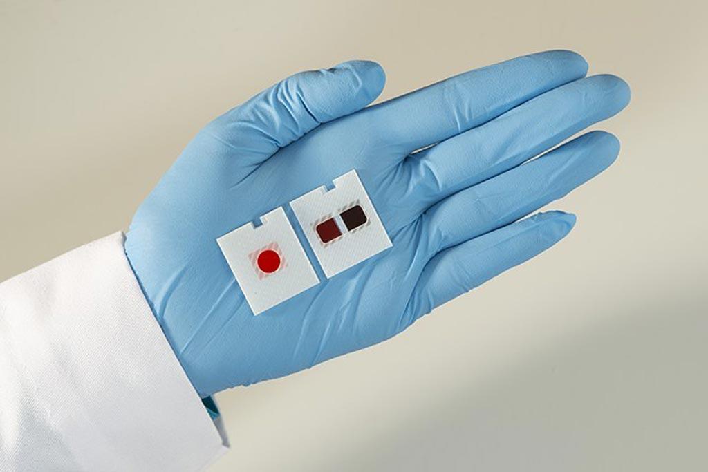 Image: The Multi-Test VITROS chemistry product slides (Photo courtesy of Ortho Clinical Diagnostics).