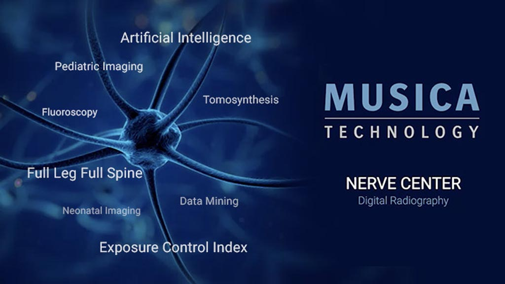 Image: The MUSICA Nerve Center offers customer-driven workflow and powerful, innovative features (Photo courtesy of Agfa HealthCare).