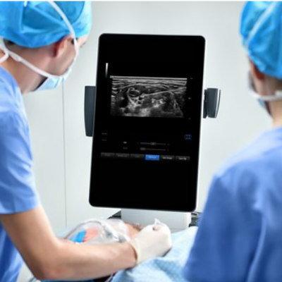 Point-of-Care (POC) Ultrasound System