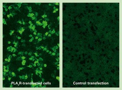 Autoantibody Biomarker