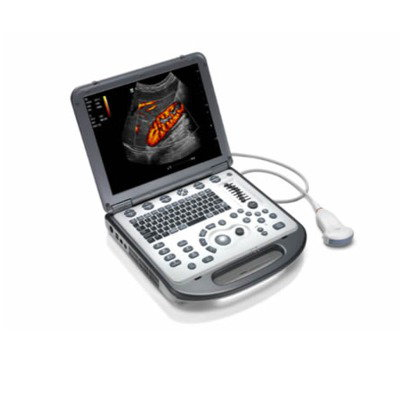 Hand-Carried Ultrasound System