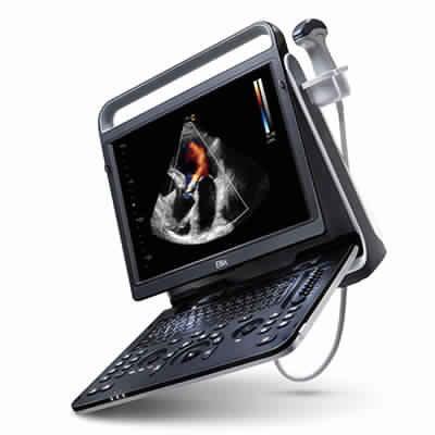 Cardiovascular Ultrasound System