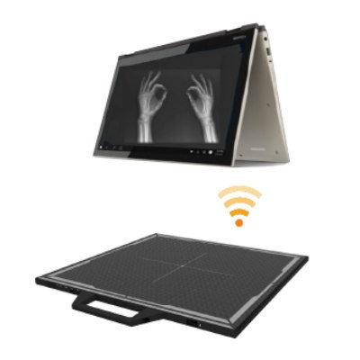 Digital Radiographic Solution