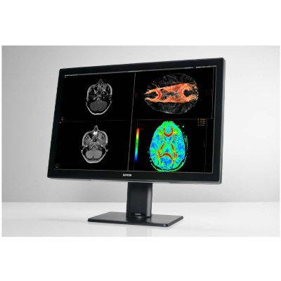 Radiology Display