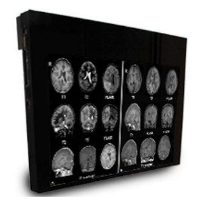 MRI Display