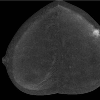 Contrast Enhanced Spectral Mammography (CESM)