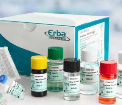 SARS-CoV-2 (COVID-19) Antibody Test
