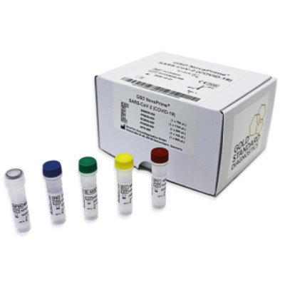 SARS-CoV-2 (COVID-19) Test